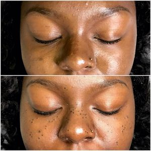 Freckles tattoo by Jessica Knapnick aka Magick Brows: creator of AstroFrecks #Astrofrecks #JessicaKnapnik #MagickBrows #permanentmakeup #cosmetictattooing #cosmetictattoo #freckletattoos
