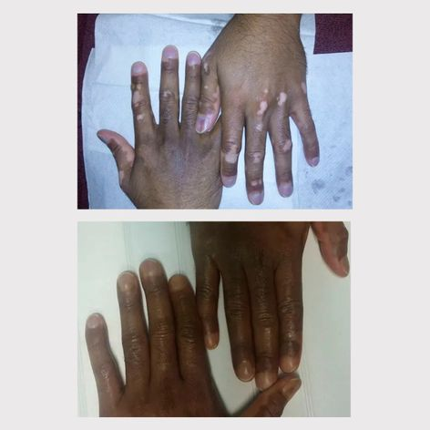 Vitiligo camouflage tattoo to hide depigmentation by Feleshia Sams #FeleshiaSams #paramedicaltattoos #cosmetictattooing #Vitiligo #camouflagetattoos #restorativetattooing
