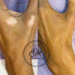 Vitiligo camouflage tattoo to hide depigmentation by Diana Maria Estudio #DianaMariaEstudio #paramedicaltattoos #cosmetictattooing #Vitiligo #camouflagetattoos #restorativetattooing