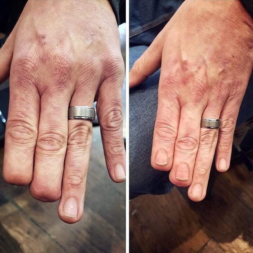 Realistic fingernail restoration tattoo by Eric Catalano #EricCatalano #fingertattoo #fingernailtattoo #paramedicaltattooing #cosmetictattooing #restorativetattoos #anatomytattoo