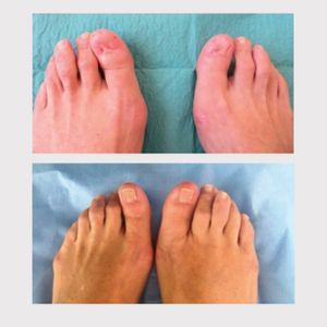 """Toenail restoration tattoo before and after from """"Medical tattooing, the new frontiers"""" in Ann Ist Super Sanita, 2017 #paramedicaltattoos #restorativetattooing #cosmetictattooing"""