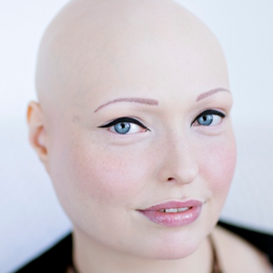 Brenda Finn, a model and alopecia awareness influencer, shows off her eyebrow tattoos. #BrendaFinn #cosmetictattooing #paramedicaltattoos #permanentmakeup #eyebrowtattoo