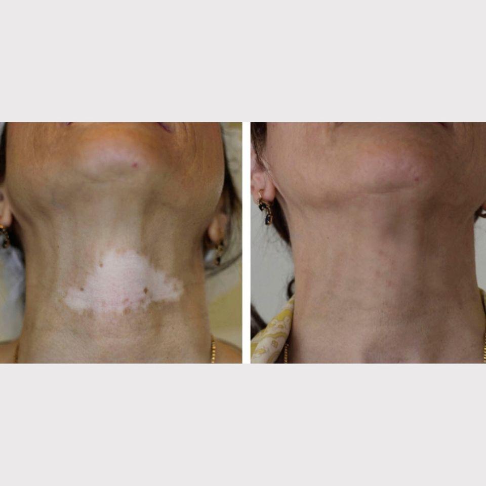 Skin depigmentation camouflaged with paramedical tattoo – image courtesy of Indellibelle #paramedicaltattoos #cosmetictattoo #skindepigmentation #camouflagetattoo