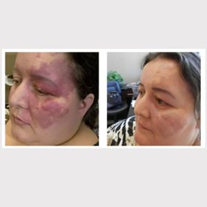Annette White's birthmark before and after several rounds of treatment with Basma Hameed #BasmaHameed #paramedicaltattoos #cosmetictattooing #camouflagetattoos #restorativetattooing #facialtattoos