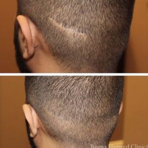 Scar camouflaged by paramedical tattoo by Basma Hameed Clinic #BasmaHameed #paramedicaltattoos #cosmetictattooing #permanentmakeup #scalpmicropigmentation #scarcoverup