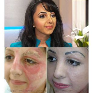 Basma Hameed before and after her facial tattoo treatment #BasmaHameed #paramedicaltattoos #cosmetictattooing #camouflagetattoo #permanentmakeup #scarcoverup #facialtattoos