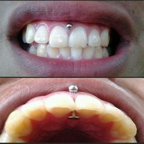 Gum Piercing #Piercing #BodyModification #Oralpiercings #gum