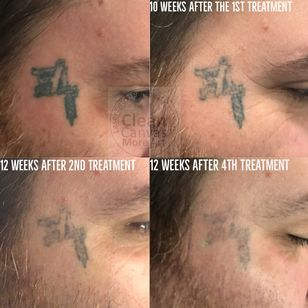 Tattoo artist Rocky Burley gets tattoo removal by Bethany of Clean Canvas More Art #CleanCanvasMoreArt #lasertattooremoval #tattooremoval