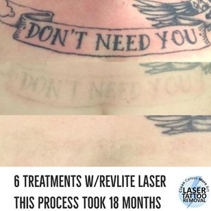 Clean Canvas More Art #CleanCanvasMoreArt #lasertattooremoval #tattooremoval