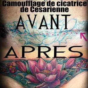 Camouflage de cicatrice de césarienne. Lotus néotrad et fleurs de cerisier dans l'eau. #coverup