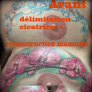 Cover up ou camouflage de reconstruction mammaire. Cicatrice du cancer du sein cachée par un tatouage d'orchidées roses sur fond vert. #orchidées #sein #cancer
