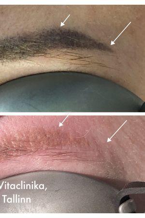 Permanent makeup laser removal