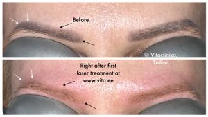 Right after first permanent makeup laser procedure