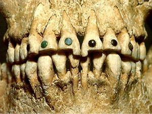 Mayan Jade tooth inlays #Mayan #jade #toothinlay #toothbling #ancientbodymodifications #bodymodifications #bodymods #tribal