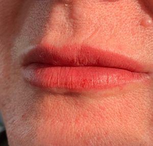 Permenant Lip Enhancement #sphinkscanada #permanentmakeup #permanentlipcolour #sammisparkles #permablendink