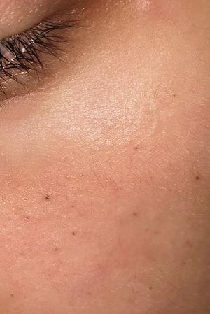 Healed freckles