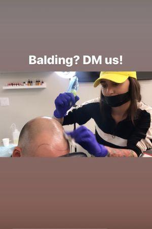 Balding? message me!!