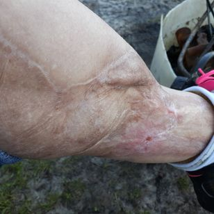 Scar tissue on lower left calf