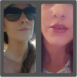 #micropigmentation #lipblush #lips #lipenhancement #swollen #healing