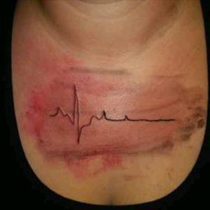 #heartbeat #blackandred #redandblack