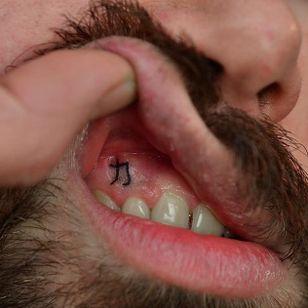 Gum tattoo by Indy Voet. #IndyVoet #handpoke #gum #sticknpoke