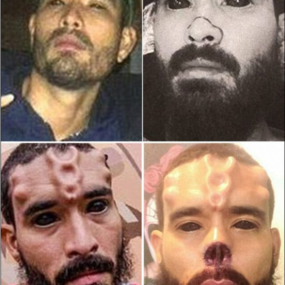 Several stages of Henry Rodriguez's transformation into the Red Skull (IG—therealredskull). #bodymodification #HenryRodriguez #Marvel #RedSkull #TheRealRedSkull