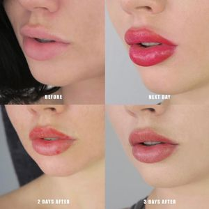Lips by Melissa Brockfield (via IG-melissamayuge) #cosmetictattoo #lips #makeup #lipblush #lipstick #MelissaBrockfield