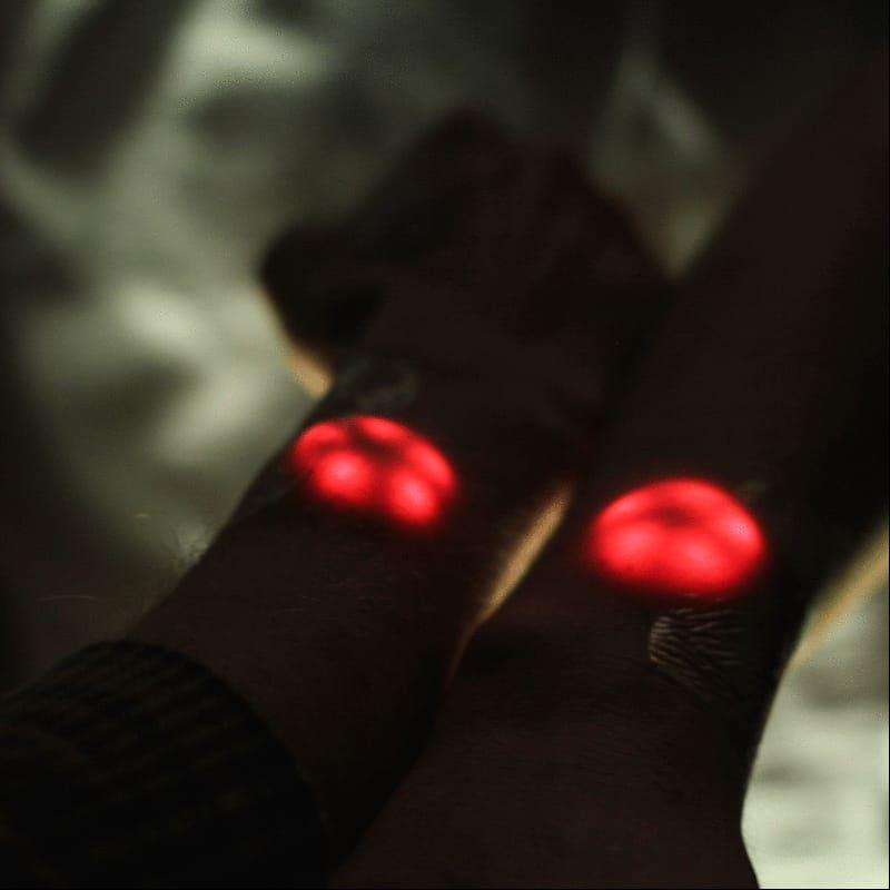 Northstar V1 test. (Photo via Motherboard.) #cyborg #bodymodifications #biohacking #science #diy #bodymods #implants #grindhouse