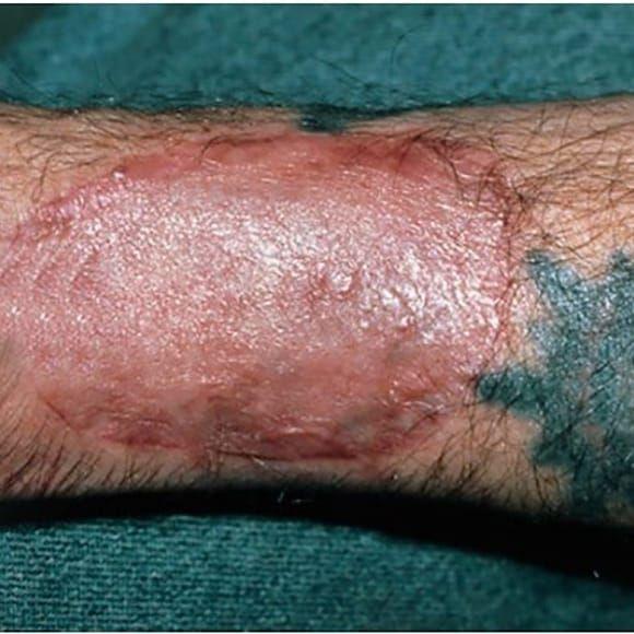 Enxerto de pele após reação alérgica do paciente! #laser #remoçãodetatuagem #saúde #dermatologia #cuidados #LaserRemoval