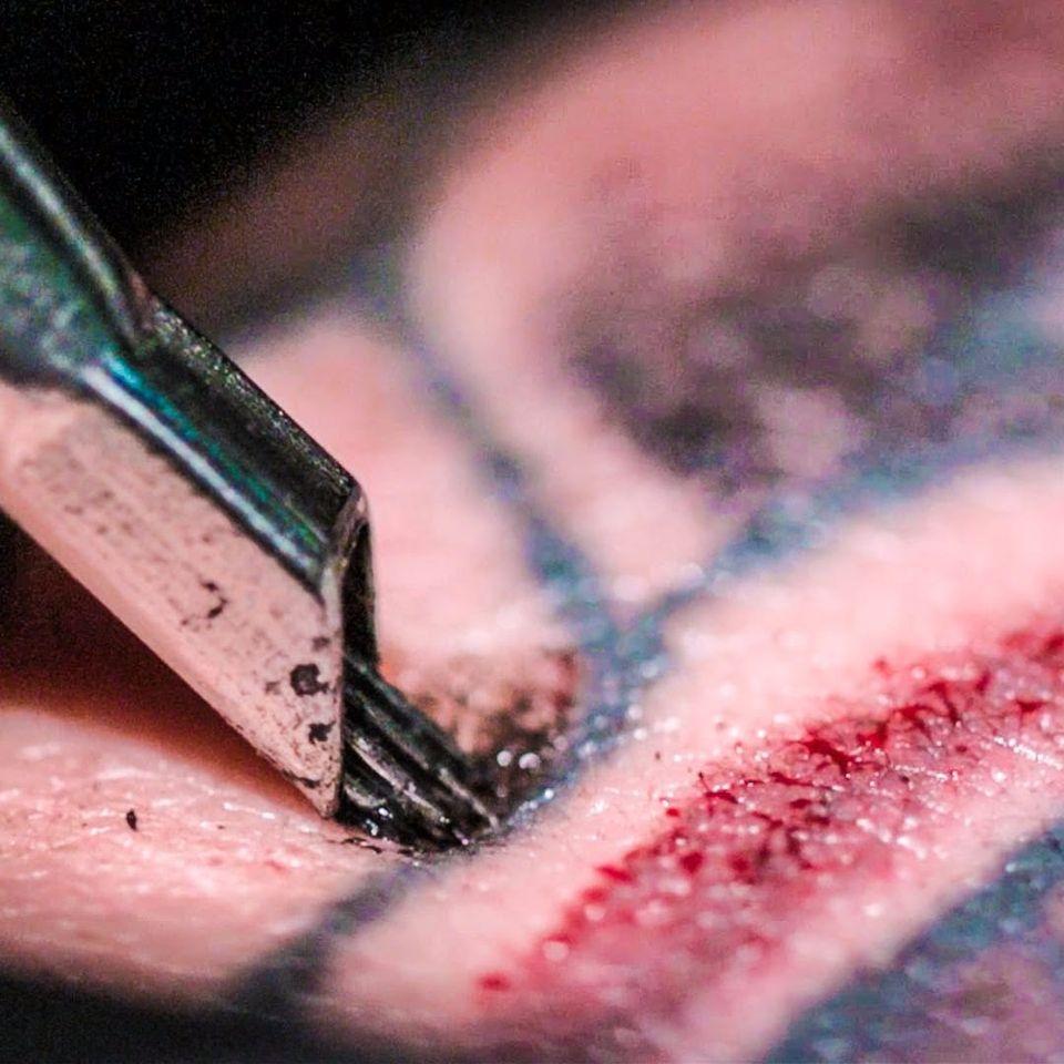 Que imagem satisfatória! #laser #remoçãodetatuagem #saúde #dermatologia #cuidados #LaserRemoval