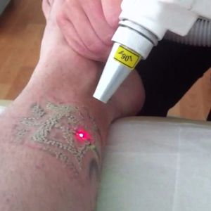 Laser trabalhando. #laser #remoçãodetatuagem #saúde #dermatologia #cuidados #LaserRemoval