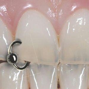 Dental piercing sample #Dental #Tooth #Piercing #BodyModification